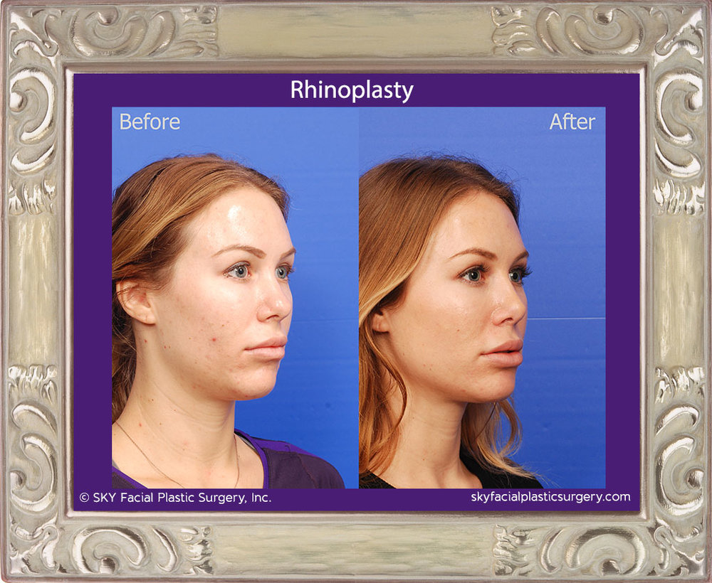 Copy of Rhinoplasty