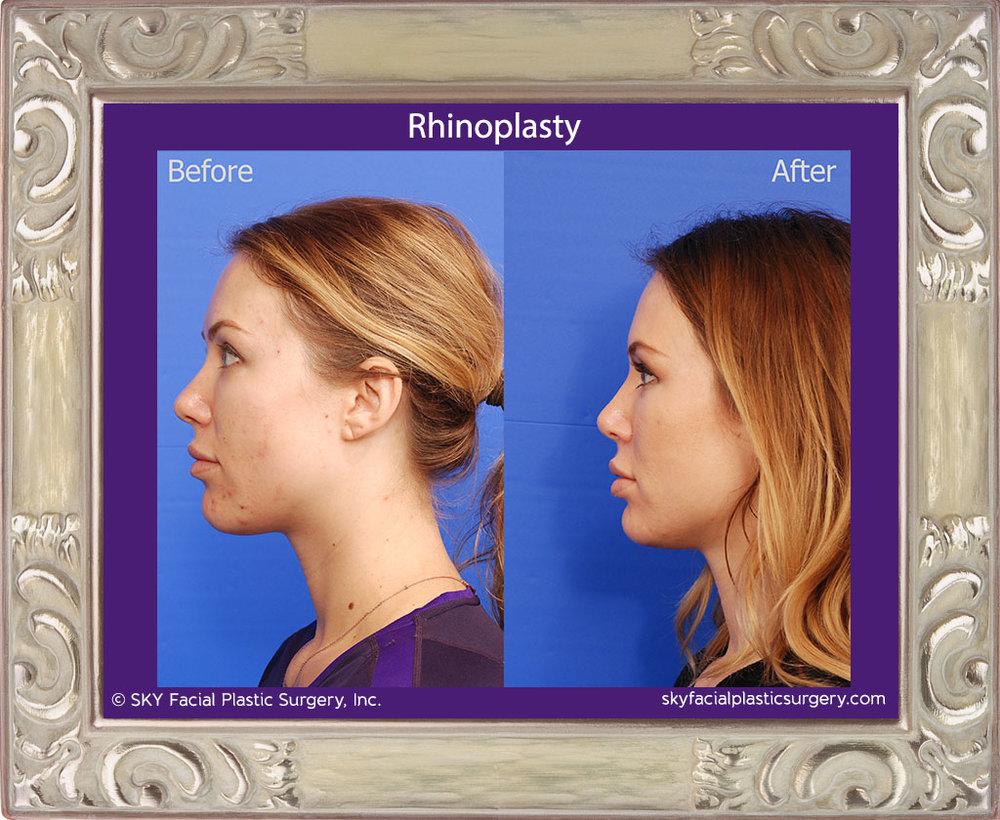 Copy of Rhinoplasty