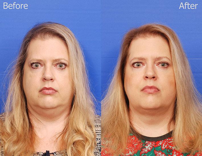 Frontal-Comparison2.jpg