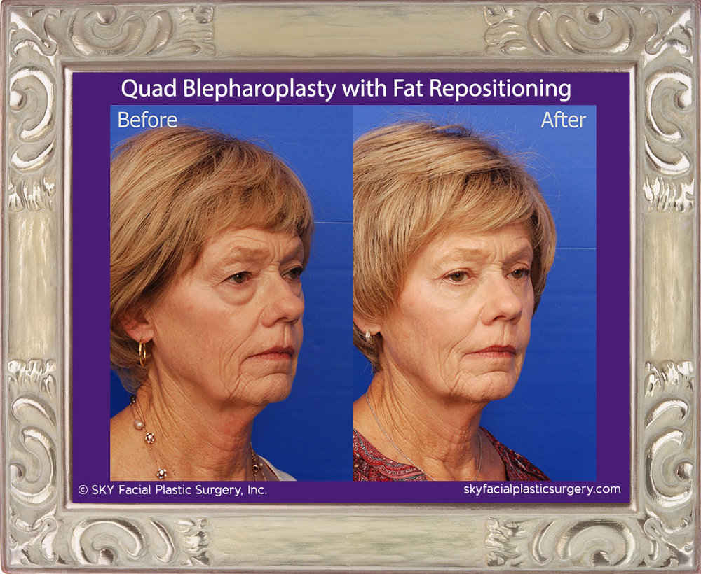 SKY-Facial-Plastic-Surgery-Lower-Lid-Blepharoplasty-18C.jpg
