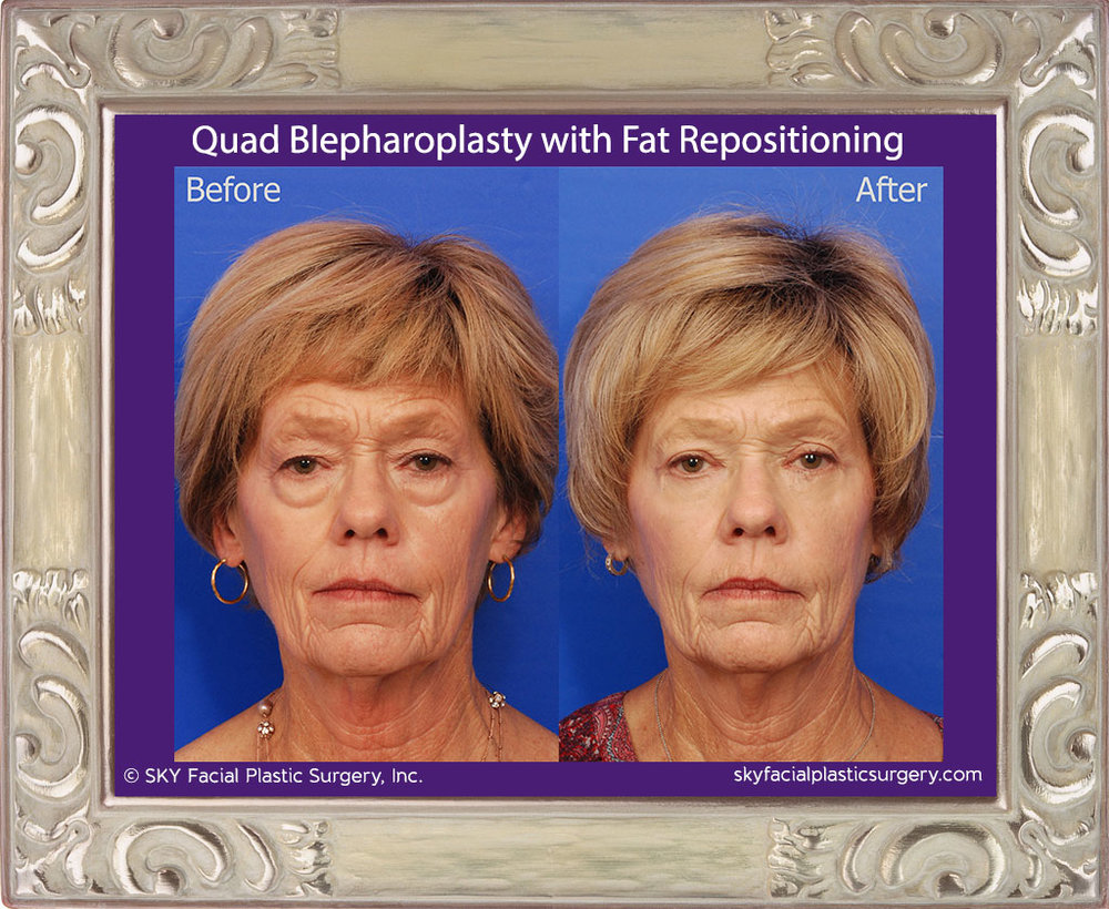 SKY-Facial-Plastic-Surgery-Lower-Lid-Blepharoplasty-18A.jpg