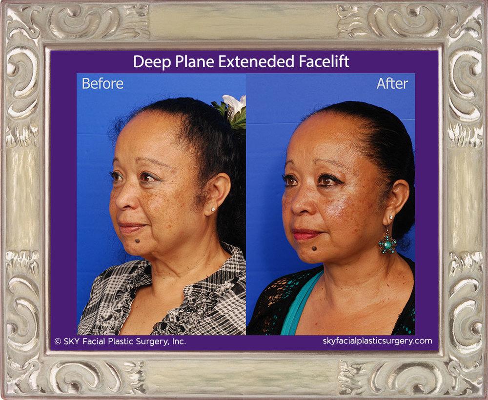Deep plane extended facelift