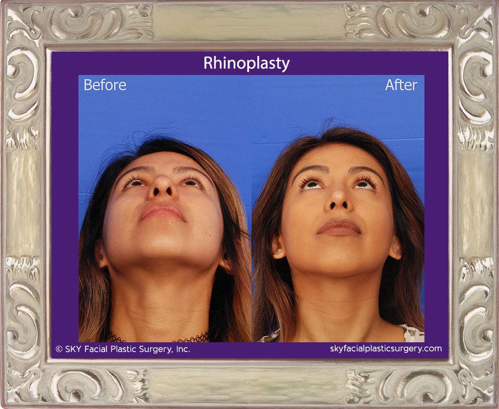 SKY-Facial-Plastic-Surgery-Rhinoplasty-36F.jpg