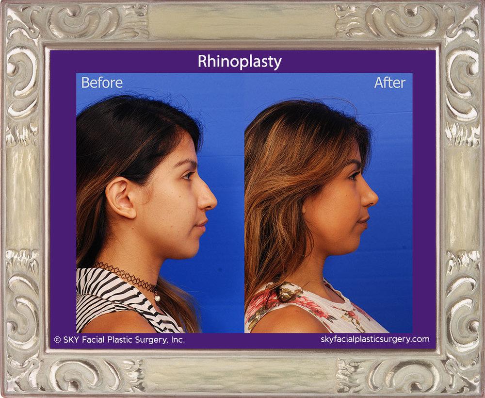 SKY-Facial-Plastic-Surgery-Rhinoplasty-36E.jpg