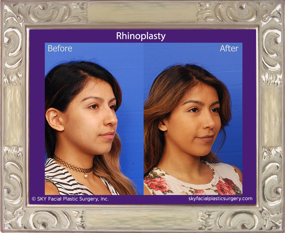 SKY-Facial-Plastic-Surgery-Rhinoplasty-36D.jpg