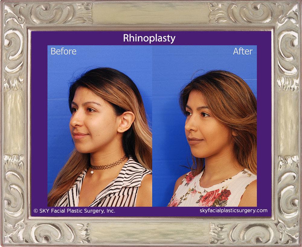SKY-Facial-Plastic-Surgery-Rhinoplasty-36C.jpg