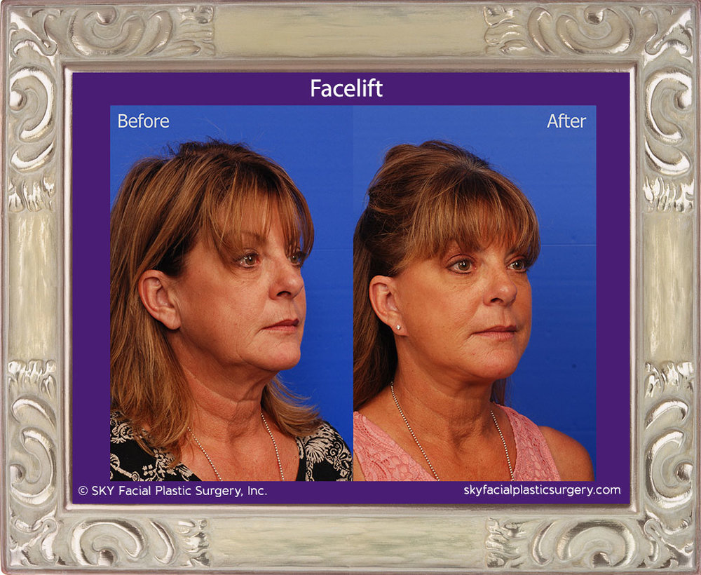 SKY-Facial-Plastic-Surgery-Facelift-15D.jpg