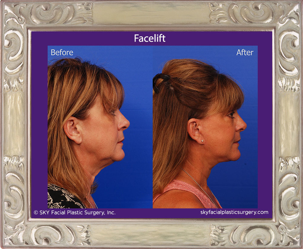 SKY-Facial-Plastic-Surgery-Facelift-15E.jpg