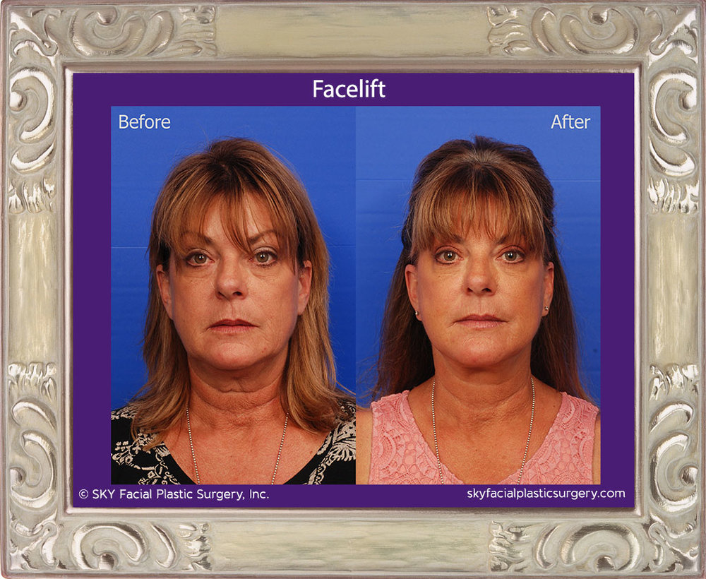 SKY-Facial-Plastic-Surgery-Facelift-15A.jpg