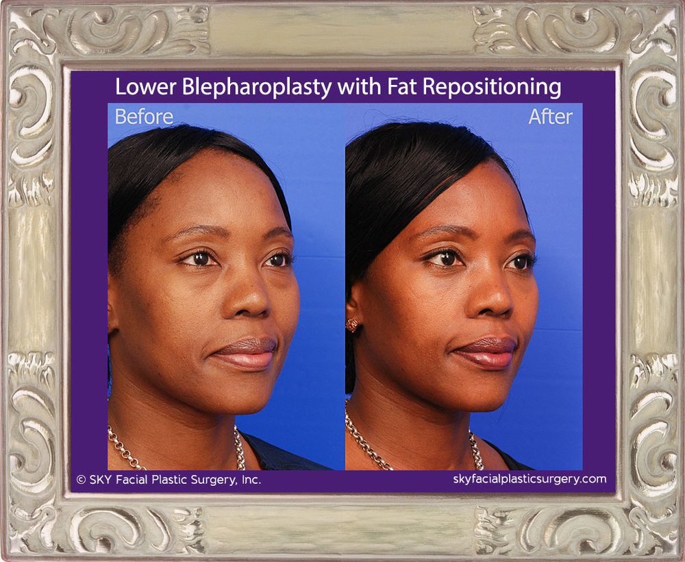Lower Blepharoplasty with Fat Repositioning