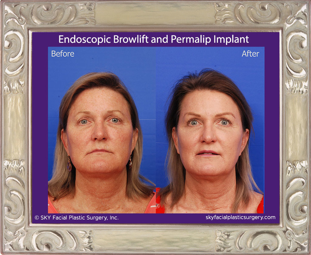 Endoscopic Browlift and Permalip Implant