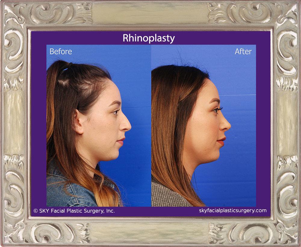 SKY-Facial-Plastic-Surgery-Rhinoplasty-37E.jpg