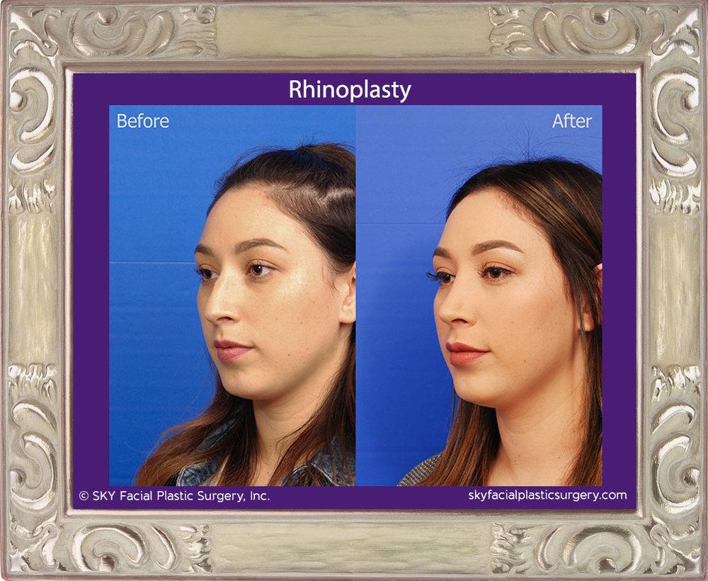 SKY-Facial-Plastic-Surgery-Rhinoplasty-37C.jpg
