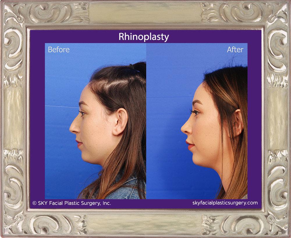SKY-Facial-Plastic-Surgery-Rhinoplasty-37B.jpg