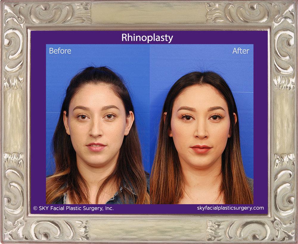 SKY-Facial-Plastic-Surgery-Rhinoplasty-37A.jpg