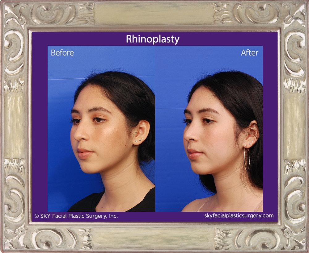 Copy of Cosmetic rhinoplasty