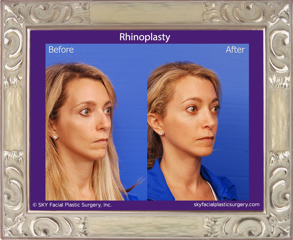 Copy of Rhinoplasty - San Diego