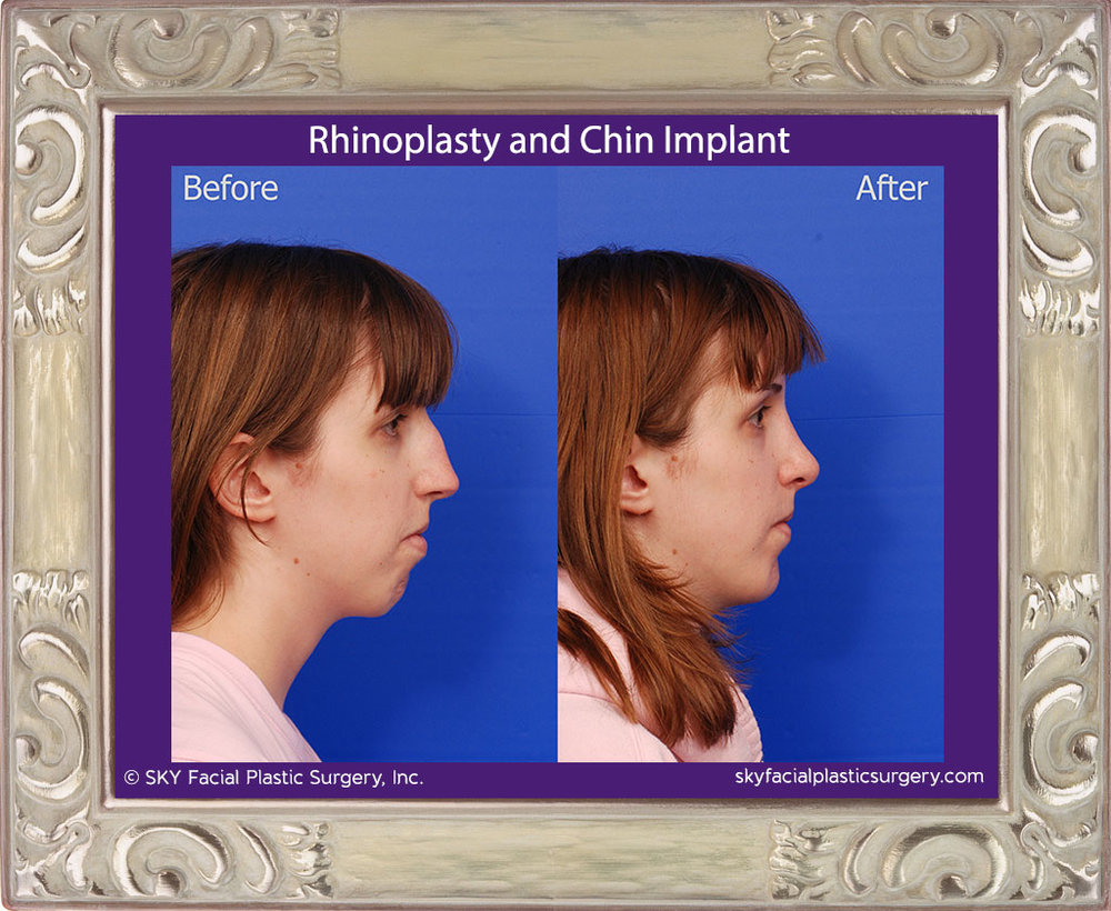 Copy of Rhinoplasty and Chin Implant - San Diego