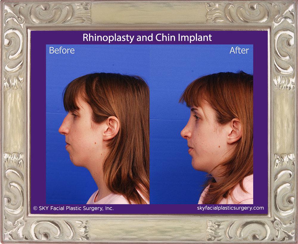 Copy of Rhinoplasty and Chin Implant - San Diego