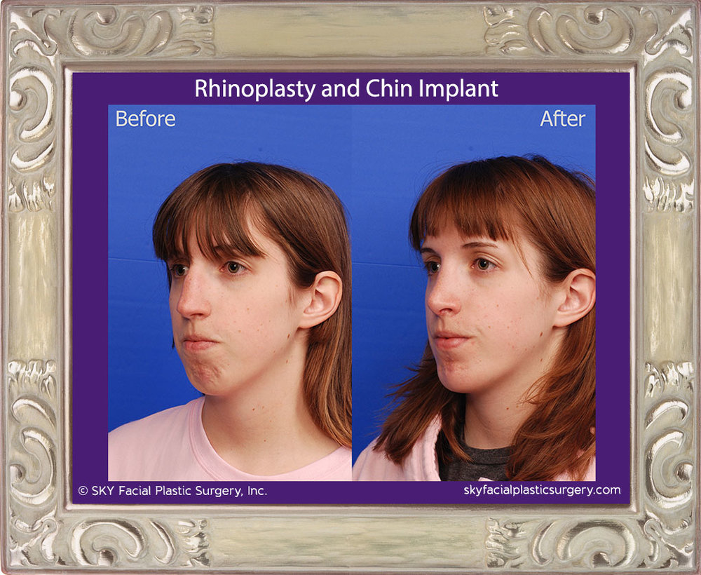 Rhinoplasty and Chin Implant - San Diego