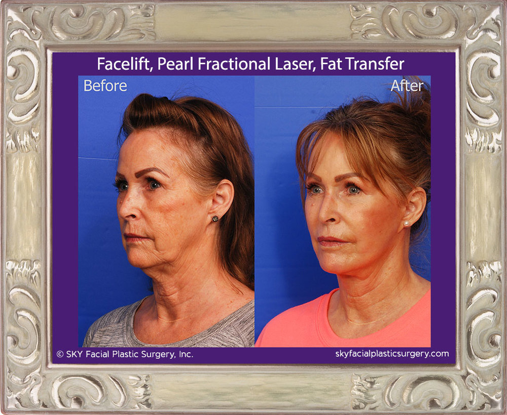 Facelift, Fat Transfer, Pearl Fractional Laser - San Diego