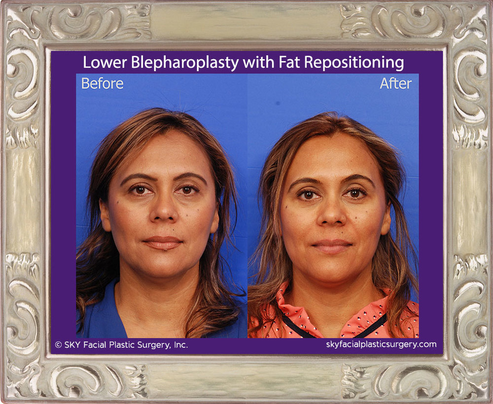 Lower Blepharoplasty with Fat Repositioning - San Diego