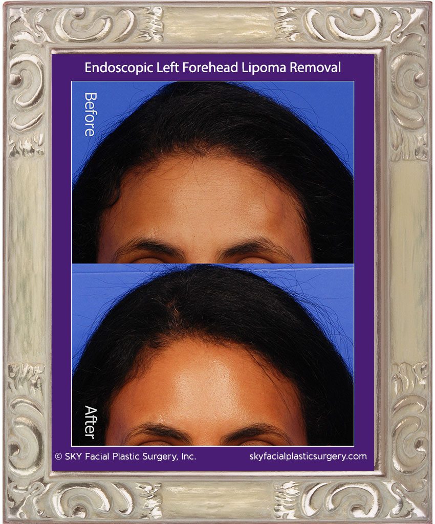 Scarless forehead lipoma removal