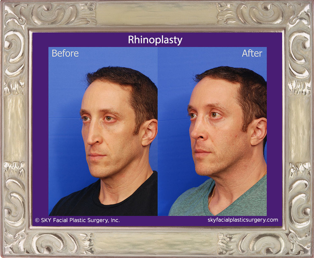 Copy of Male Rhinoplasty - San Diego