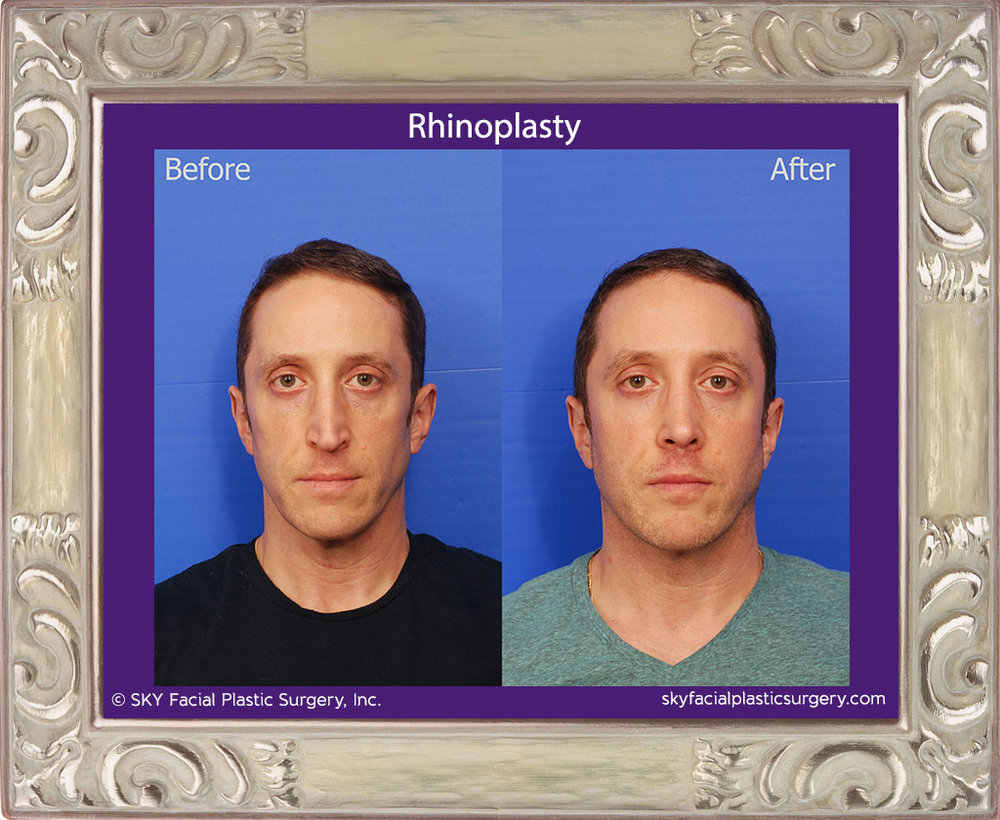 Male rhinoplasty San Diego