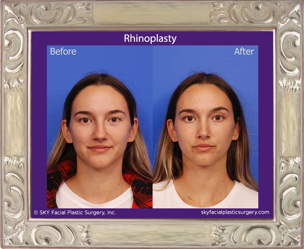 Copy of Cosmetic Rhinoplasty - San Diego