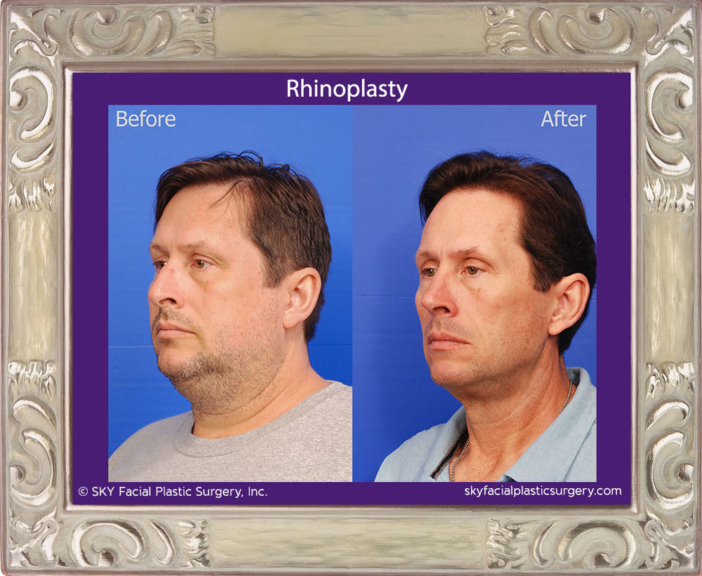 Male Rhinoplasty - San Diego