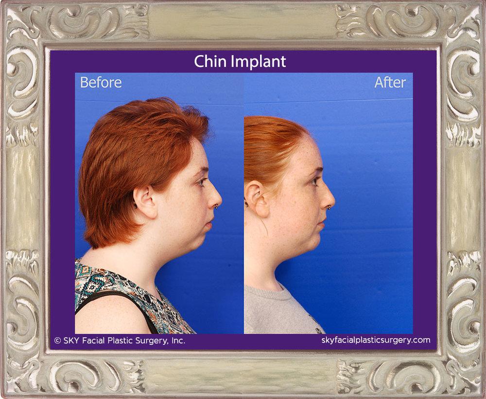 Chin-Implant-1E.jpg