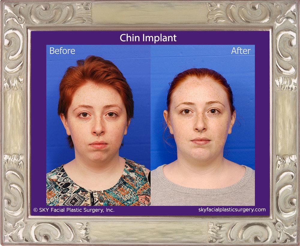 Chin-Implant-1A.jpg