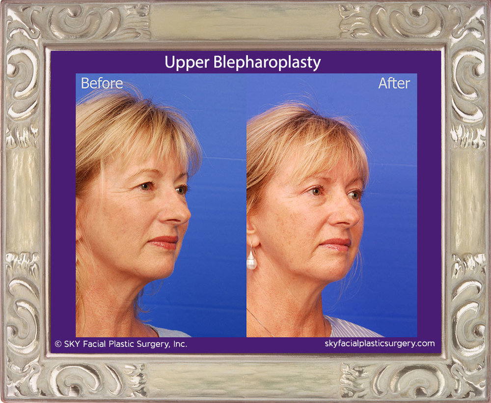 Upper Blepharoplasty - San Diego