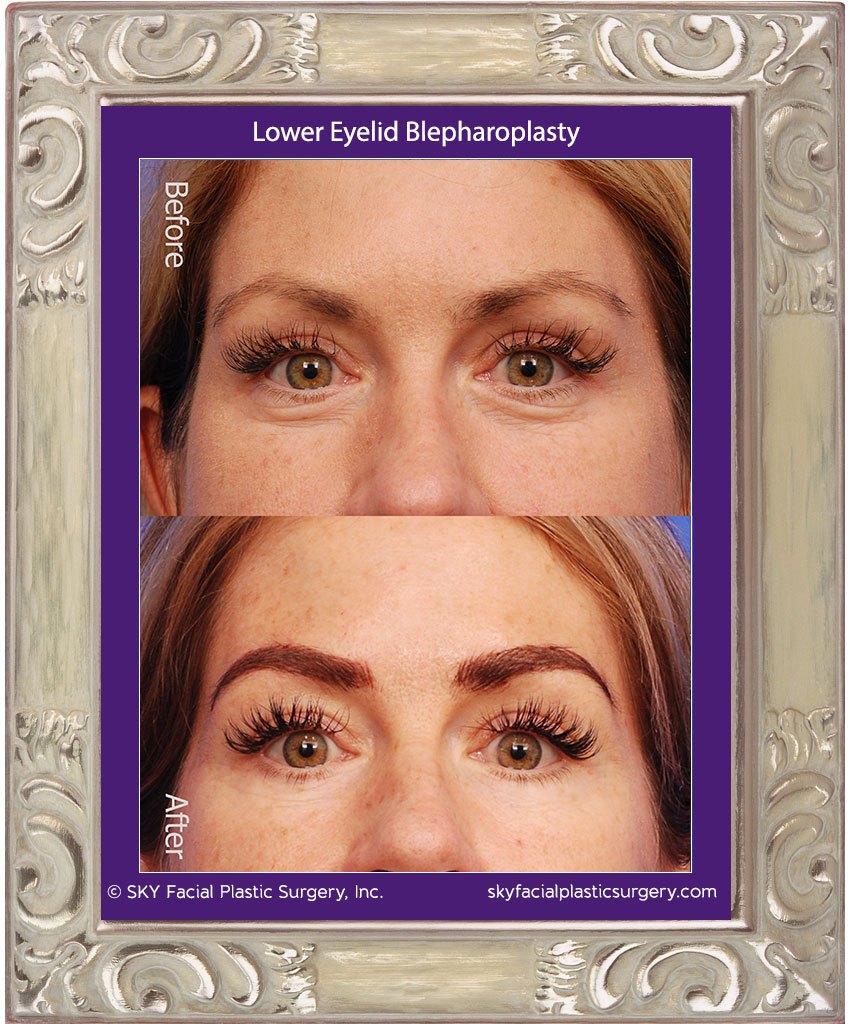 Lower Blepharoplasty - San Diego