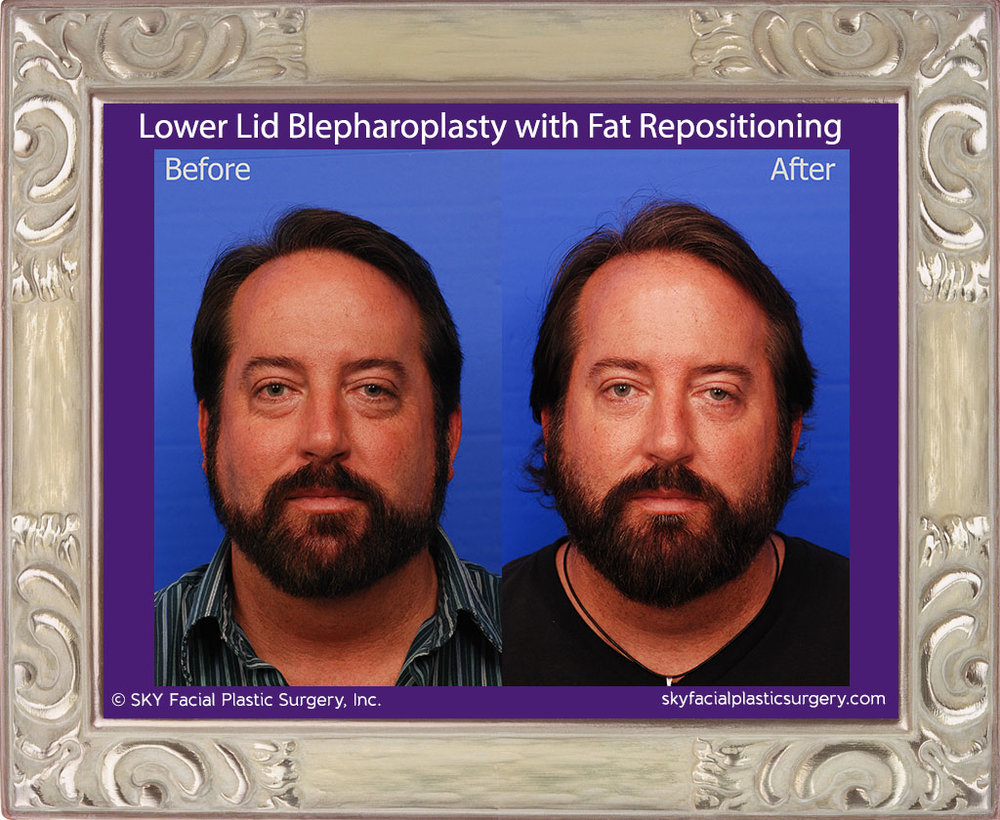 Lower Eyelid Blepharoplasty with Fat Repositioning - San Diego