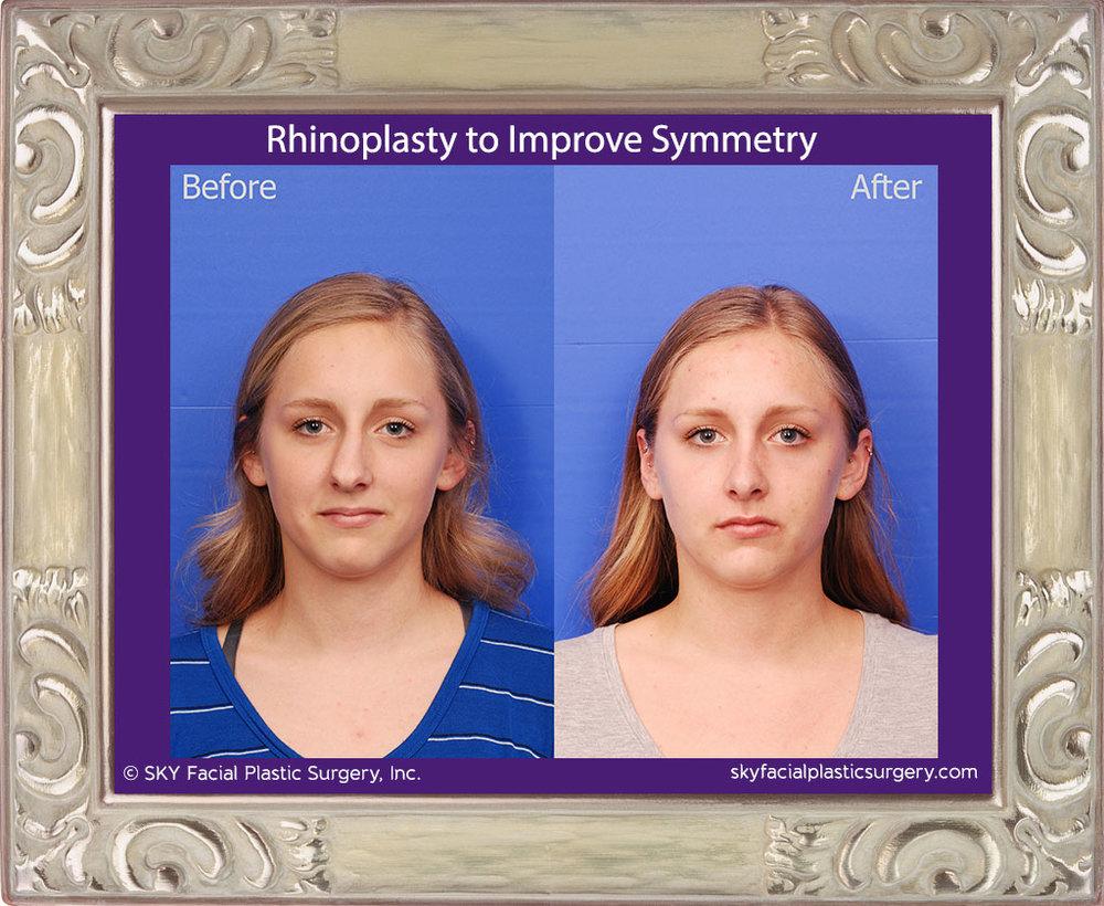 SKY-Facial-Plastic-Surgery-Rhinoplasty-50A.jpg