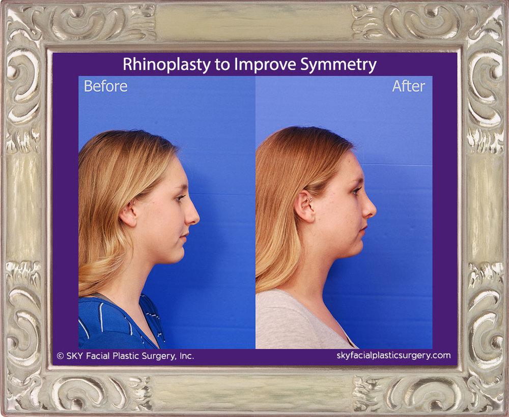 SKY-Facial-Plastic-Surgery-Rhinoplasty-50F.jpg
