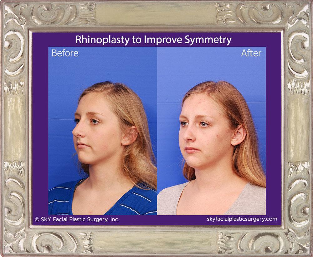 SKY-Facial-Plastic-Surgery-Rhinoplasty-50D.jpg