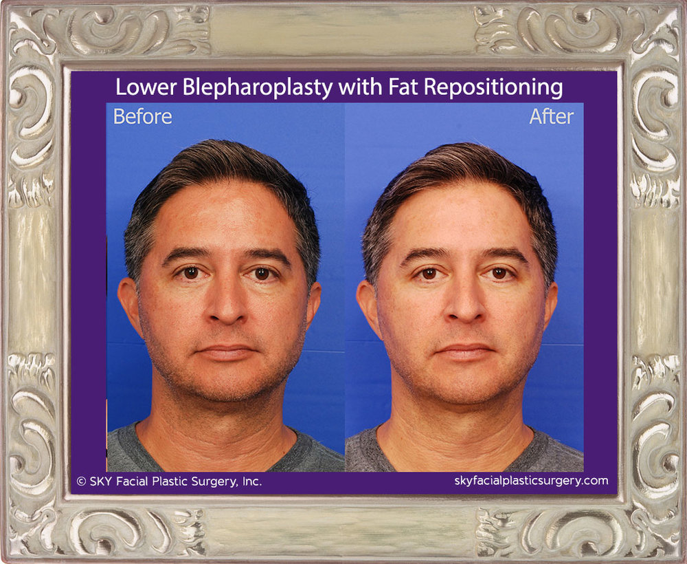 Transconjunctival Lower Blepharoplasty with Fat Repositioning
