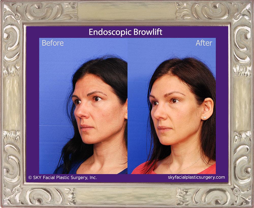 Endoscopic Brow Lift - San Diego
