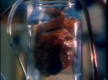 I have the heart of a young boy. I keep it in a jar in my lab.