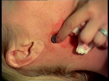 The very latest in hickey removal science.