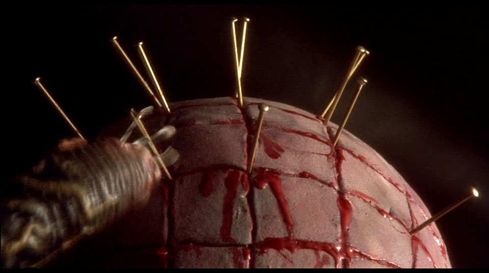 Worst acupuncture ever.