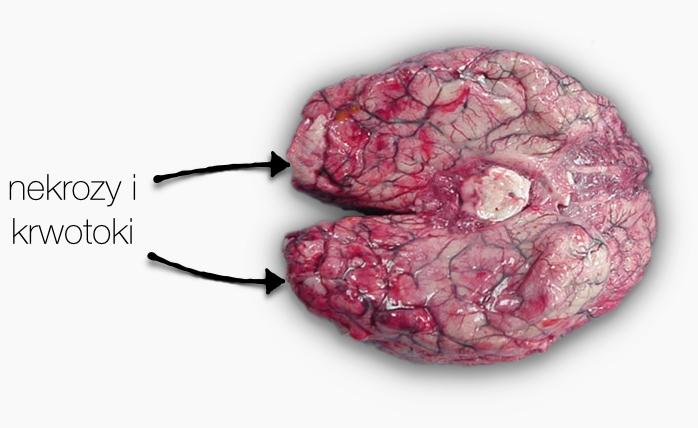Mózg zaatakowany przezNaegleria. Źródło: CDC.