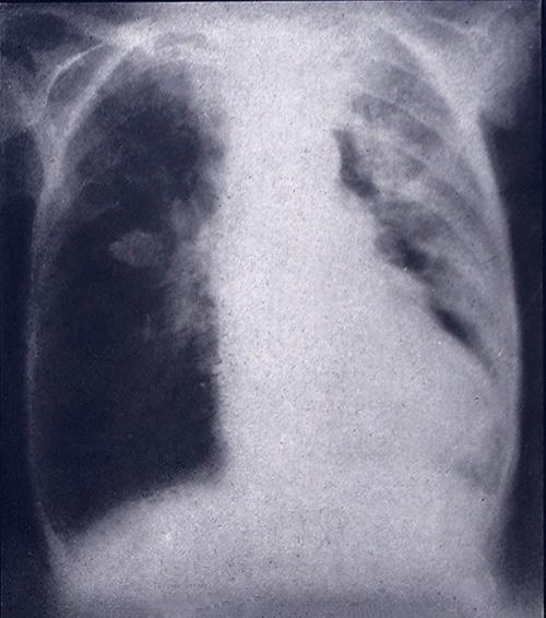 Z cyklu podpisy, które i tak nic nie wyjaśniają: rak płuc.