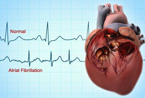 AF heart.jpg