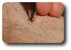 Using forceps to remove a tick.
