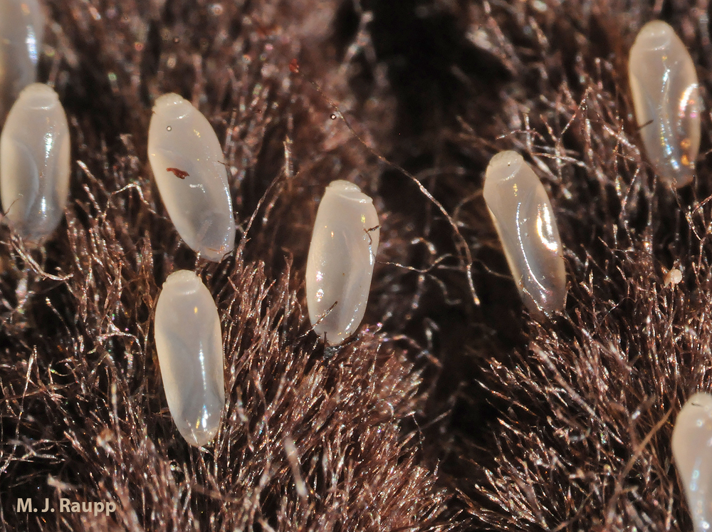 Scores of lice eggs, a.k.a nits, can be found in clothing of those infested with body lice.