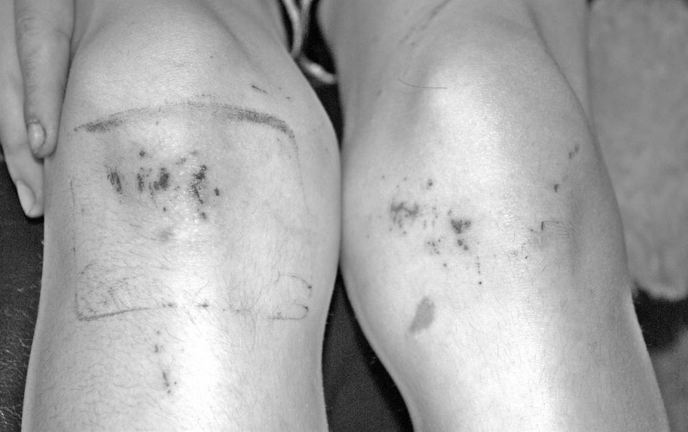 knees.jpeg